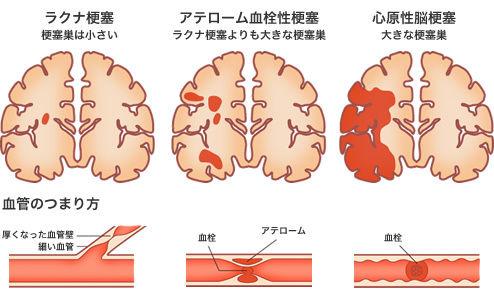 脳梗塞 画像1