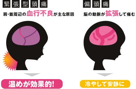 頭痛の特徴 画像1