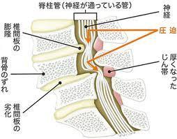 脊柱管狭窄症 画像1