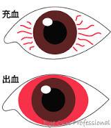 結膜下出血 画像1