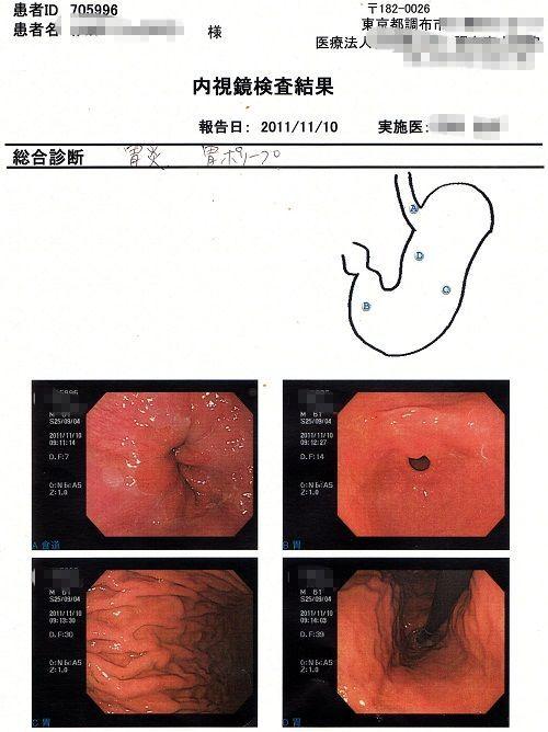 10胃カメラ