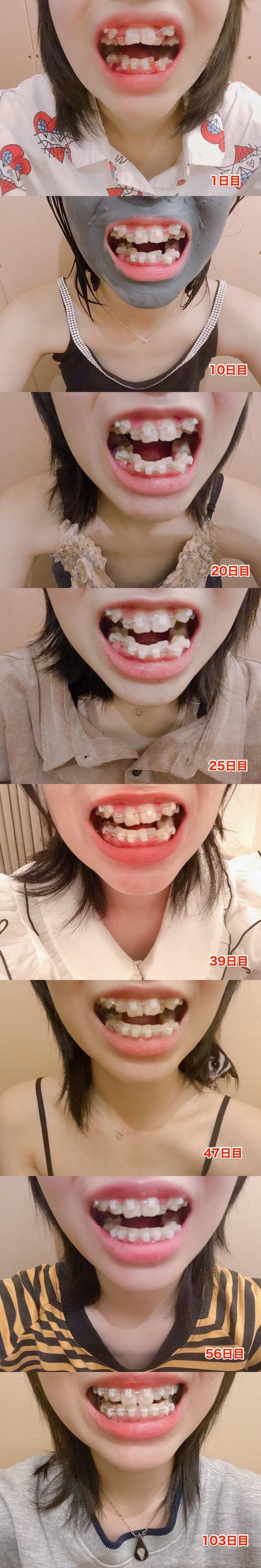 【画像】歯列矯正を3ヶ月ちょいやった結果がすごすぎる件wwwwwwwwwwwwwwww