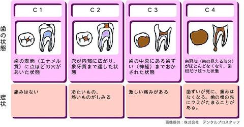 虫歯の進行図