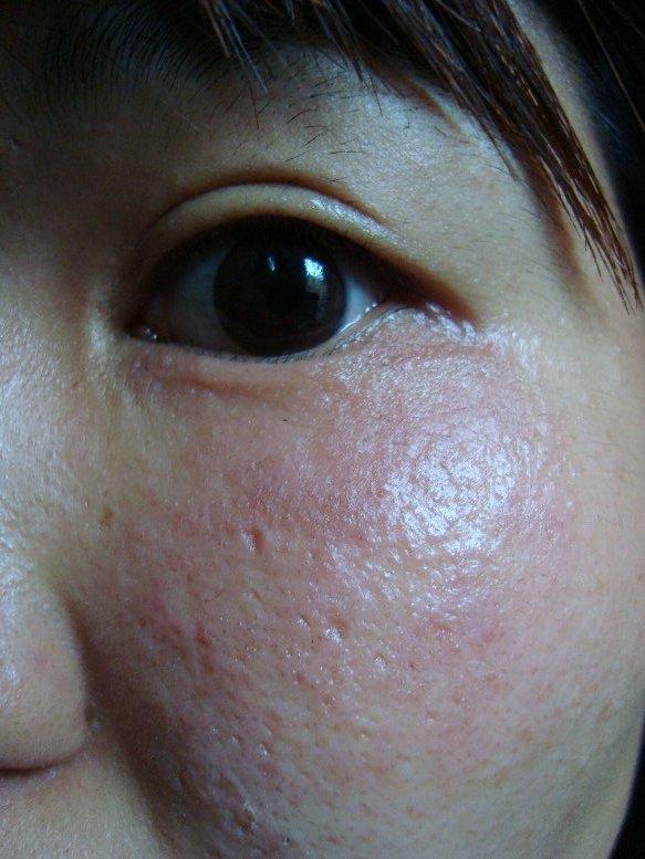 顔だけ 紫外線アレルギー