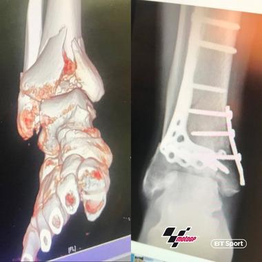 バイク乗り「足首が17個に折れて1kgの金属入ってて歩くと自重で折れるけどサーキット走るわw」
