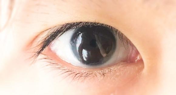 20年間目が見えなかった男性が交通事故後に視力を取り戻すという奇跡