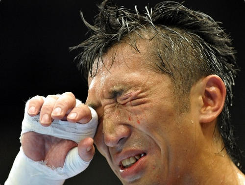 元ボクサー・内藤大助さん、トラックと接触し肋骨折る重傷