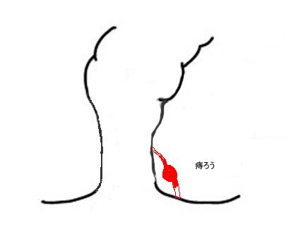疲労やストレス、下痢などにより免疫力が低下して肛門と直腸の境目(歯状線)のくぼみ部分が大腸菌などの最近感染などによって化膿し、炎症を起こし肛門周囲に膿(肛門