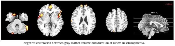 grey matter change-10