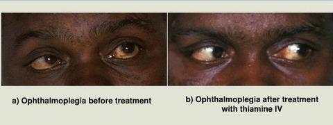 眼球運動障害