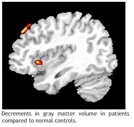 grey matter change-9