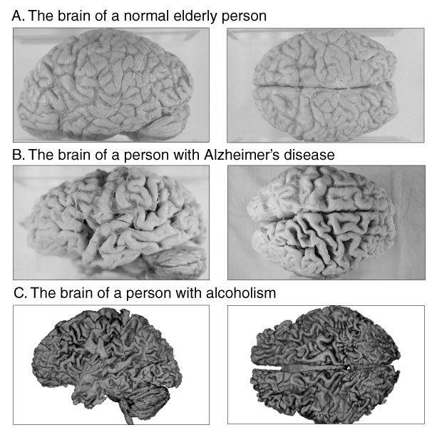 精神病・精神障害(精神疾患)の違いとは?種類や …