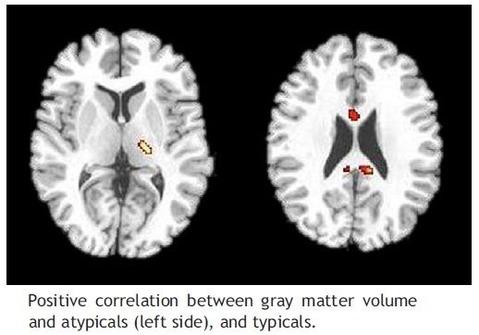 grey matter change-11