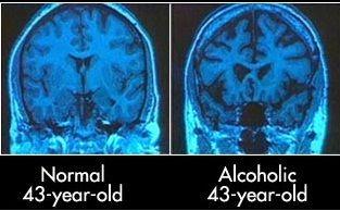 alcoholdemetia