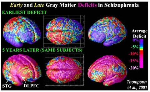 UCLA Laboratory of Neuro Imaging