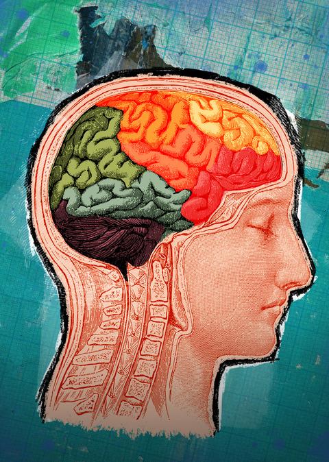 TBI_Brain on homelessness_1