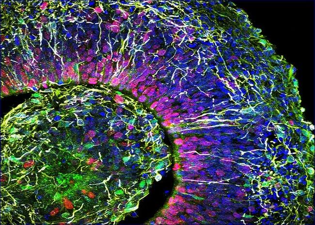 【速報】研究室で培養されたヒト脳細胞「ミニブレイン」から人間の脳波が観測されてしまう