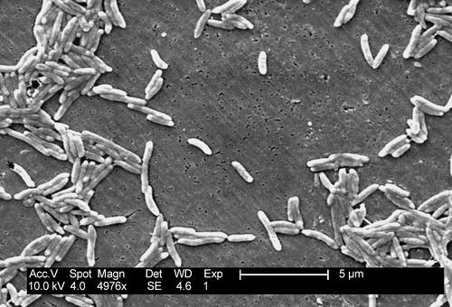Campylobacter_fetus_01