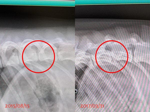 レントゲン胸椎-比較