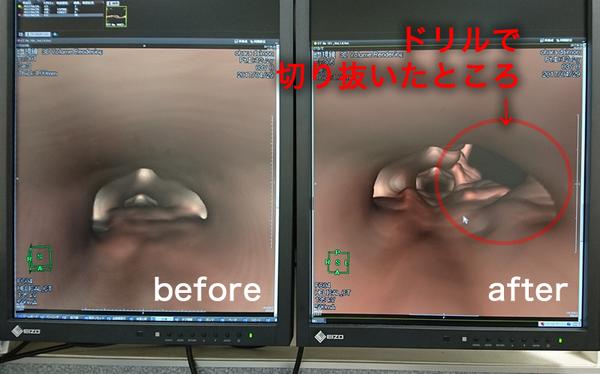 椎間板ヘルニア説明_CT_術前術後