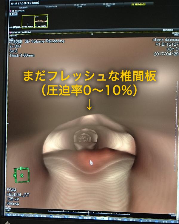 椎間板ヘルニア説明_CT2