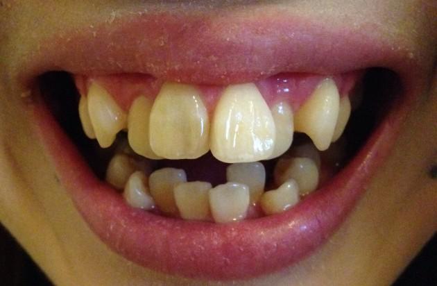 歯並びが汚い女を下に見てしまう