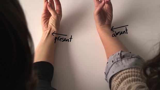 親指と小指をくっつけて、手首を内側に曲げる → 筋が出ない人は進化した人類