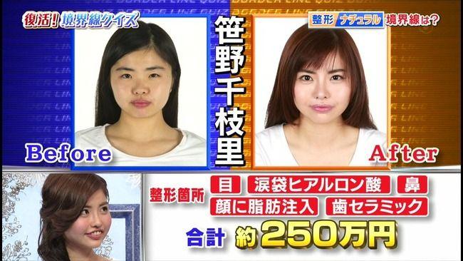 【画像あり】250万円かけて整形した結果wwwww