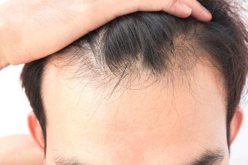 「ママは死んでるよ」 スーパー店舗内で母親を探していた男児に、頭頂部の髪が薄い男が声を掛ける事案