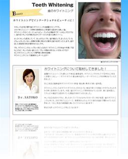 歯のホワイトニング 体験取材