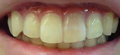 神経が死んで変色してしまった歯 画像 写真