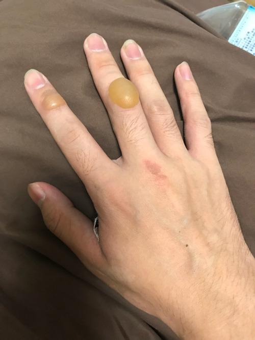 【閲覧注意】俺の指キモすぎワロタwww