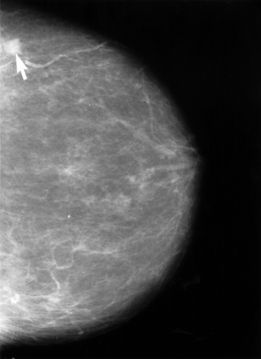 Mammogram_showing_breast_cancer
