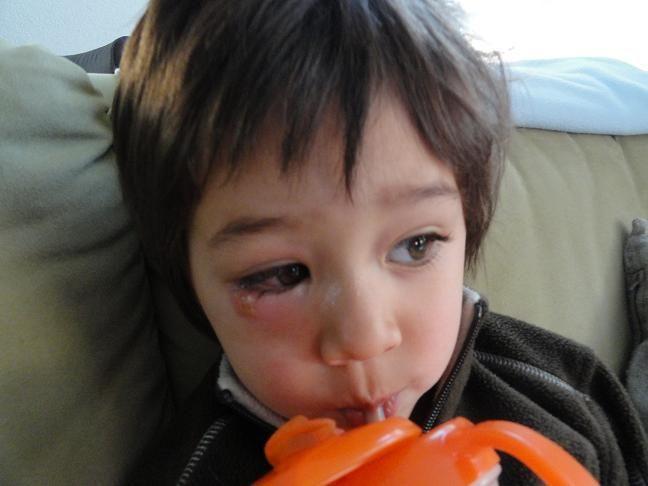 4日前にまたもやヘルペス発症。 生後13ヶ月の時にパパにヘルペス菌をもらってしまい、見事ヘルペス保持者となってしまった海音。 今回は最初火曜日の夕方に『 目に何