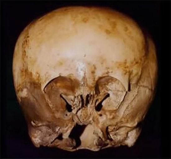 【古代研究】ペルーで発見された長く変形した頭蓋骨は、01.5.jpg