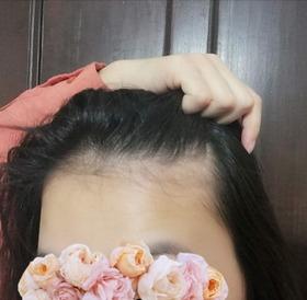 hairfall1-4