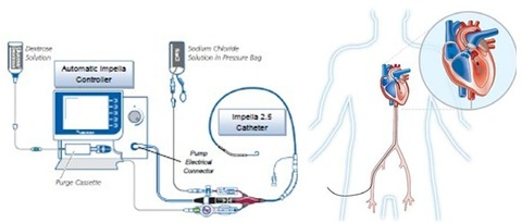 abiomed-impella-system