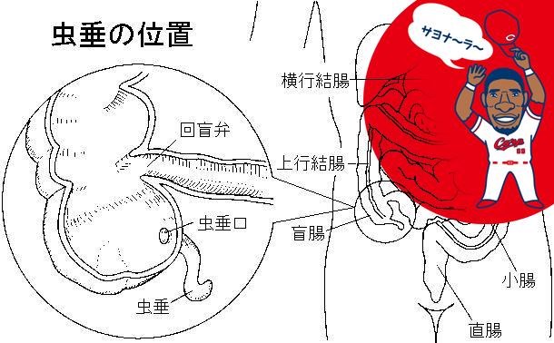 ロサリオ_盲腸