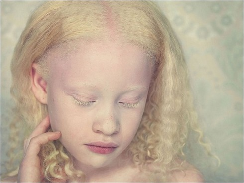 albinos07