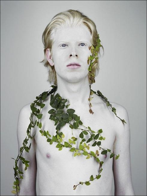 albinos08