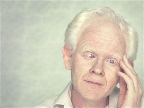 albinos01