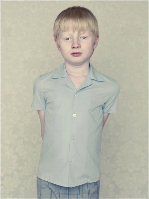 albinos05
