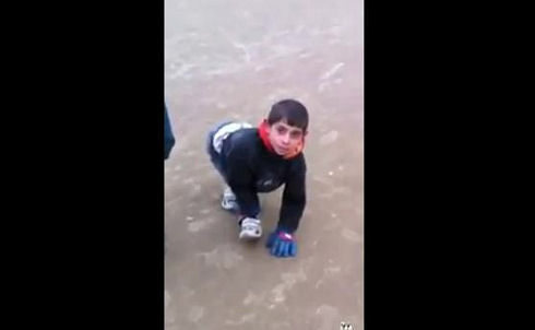Kid With Inverted Knees