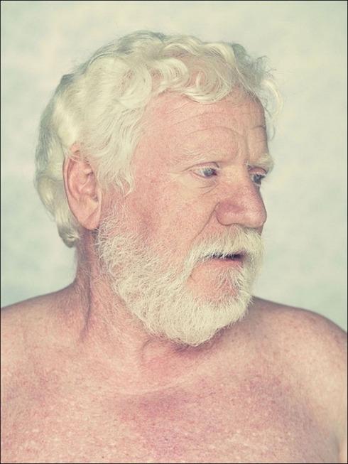 albinos03