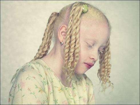 albinos02