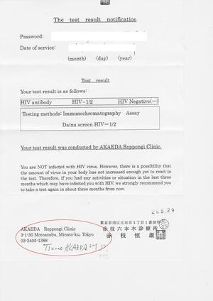 エイズ検査結果