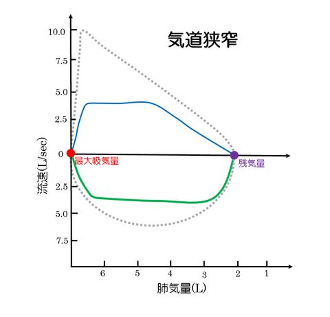 フローボリューム曲線気道閉塞