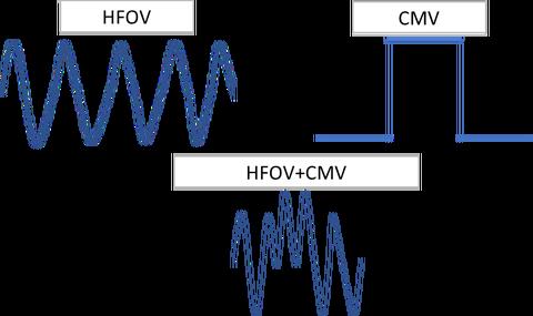 CMV+HFO