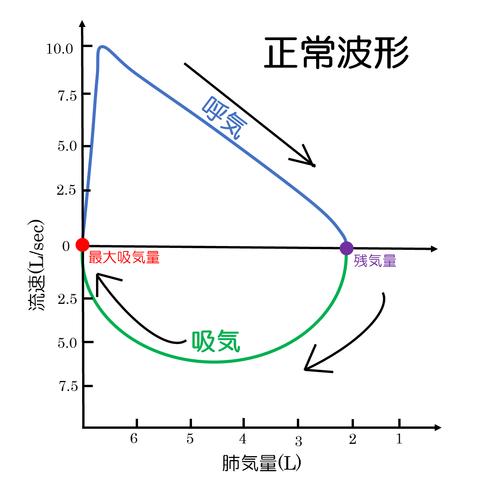 フローボリューム曲線正常波形