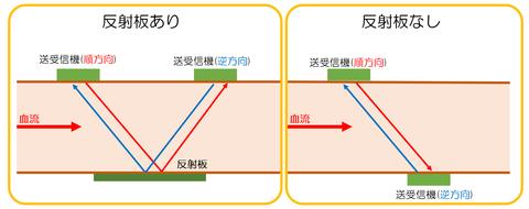 トランジットタイム型血流計測定原理